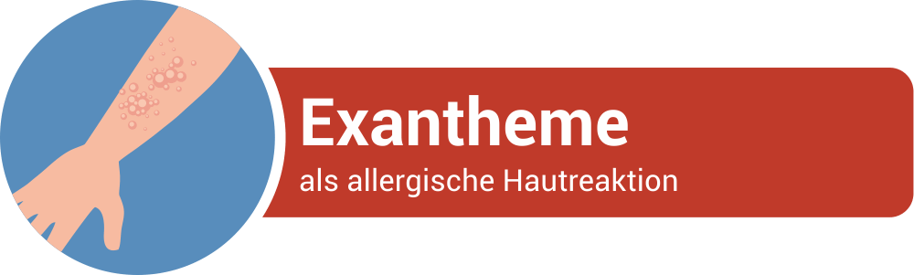 Exantheme als allergische Hautreaktion