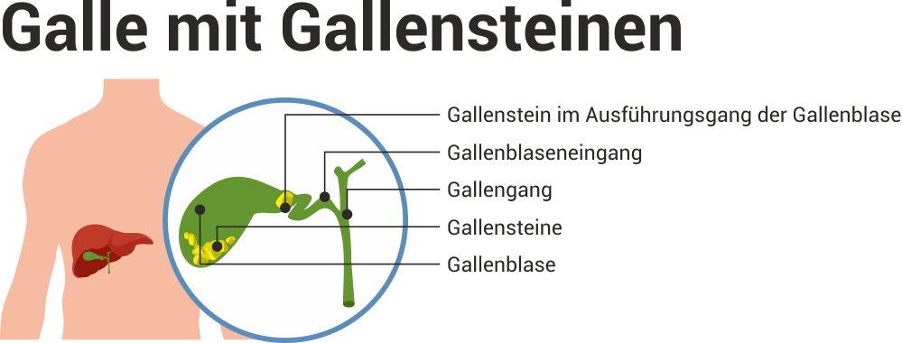 Ratgeber Gallenbeschwerden | Hilfe bei Gallenbeschwerden