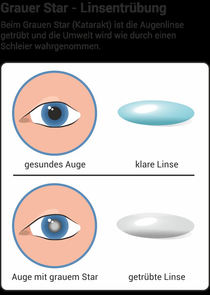 Augenkomplikationen bei Diabetes mellitus