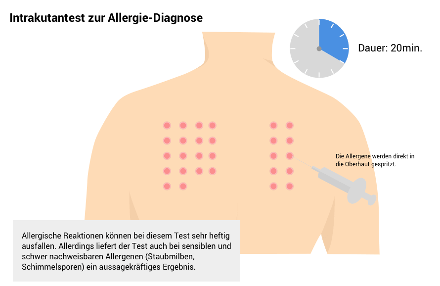intrakutantest zur allergie diagnose.png