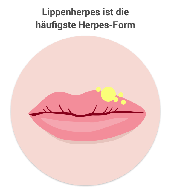 lippenherpes.png