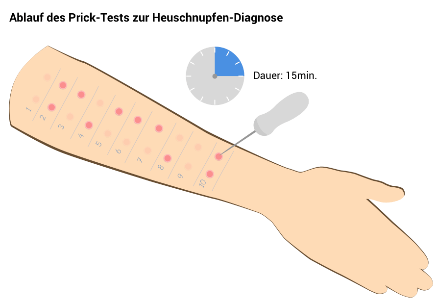 pricktest zur allergie diagnose.png